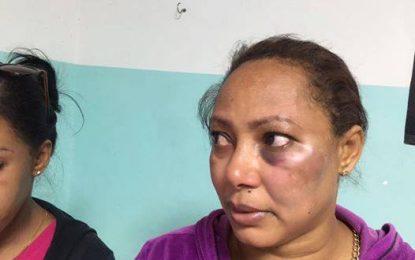 Ministerio Público investiga… Mujer denuncia que agentes policiales le dieron paliza en El Seibo