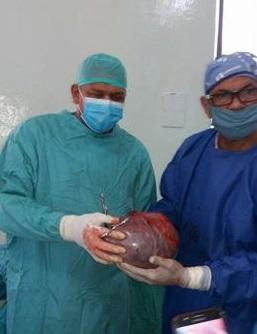 Extirpan quiste gigante de ovario de 9 libras a paciente en hospital de El Seibo