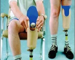 Rehabilitación dona prótesis y sillas de ruedas a personas de  escasos recursos de El Seibo